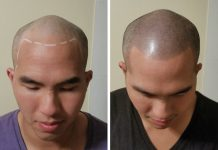 shedding after hair transplant