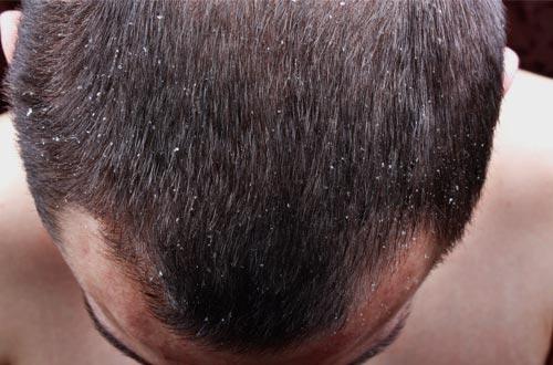 Amazing Diy Tips For Hair Fall And Dandruff Hair Transplantation World