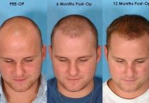 anxiety before hair transplant