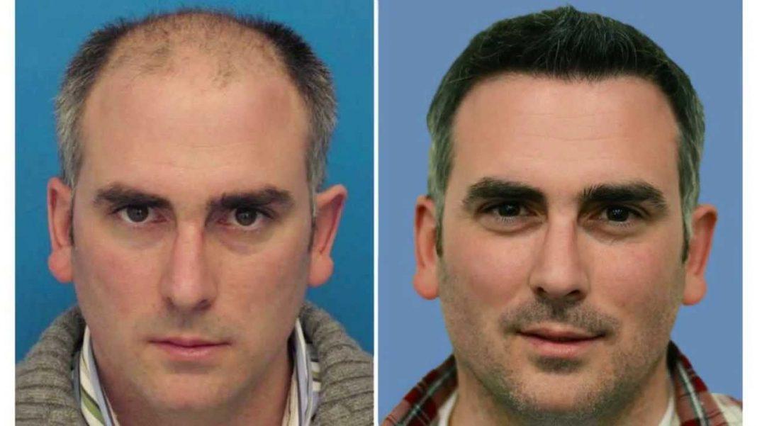 Propecia for diffuse hair loss