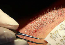 hair transplant treatment in India