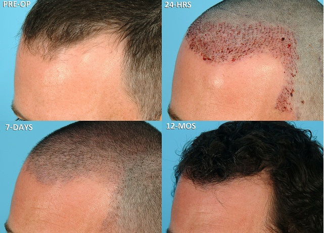 shedding of hair after hair transplant