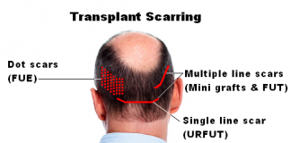 post hair transplant care