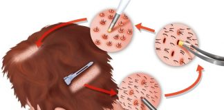 graft extraction and its placement in hair transplant