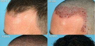 shedding of hair after hair transplant