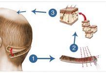 hair transplant scar