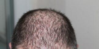hair loss treatment in delhi