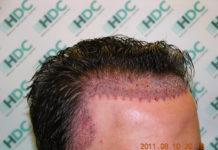 hair transplant delhi